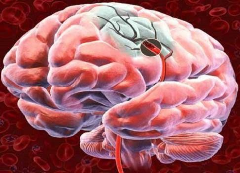 5 remedios naturales para oxigenar el cerebro