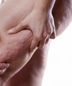 Celulitis infecciosa: síntomas y cómo prevenir este problema